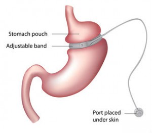 The Lap Band System Is A Bariatric Surgery Procedure Offered By Our Weight Loss Surgeons At Dfw Insute That Enables Patients To Safely And