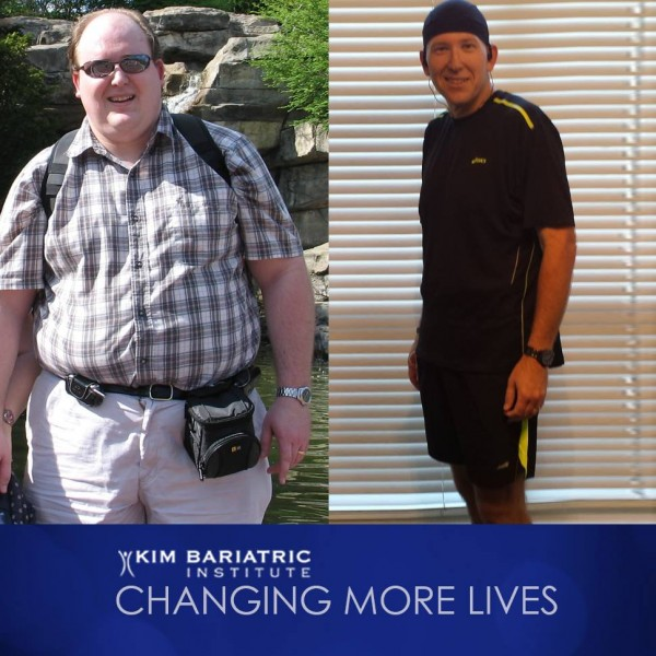 wls_before_after_obesity_surgery (1)