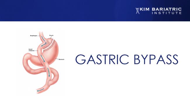 kim_bariatrics_gastric_bypass_surgery_v2