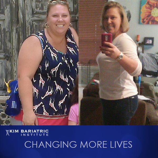 Christy_Weight_Loss_Surgery_Story_Kim_Bariatric