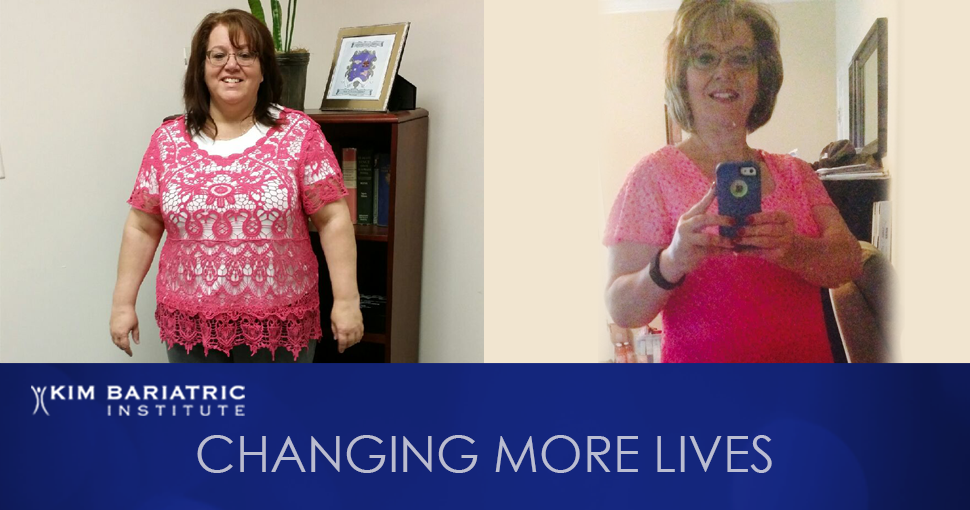 KimBariatric_Featured_Patient_Weightloss_Transformation_Tanya_FB (1)