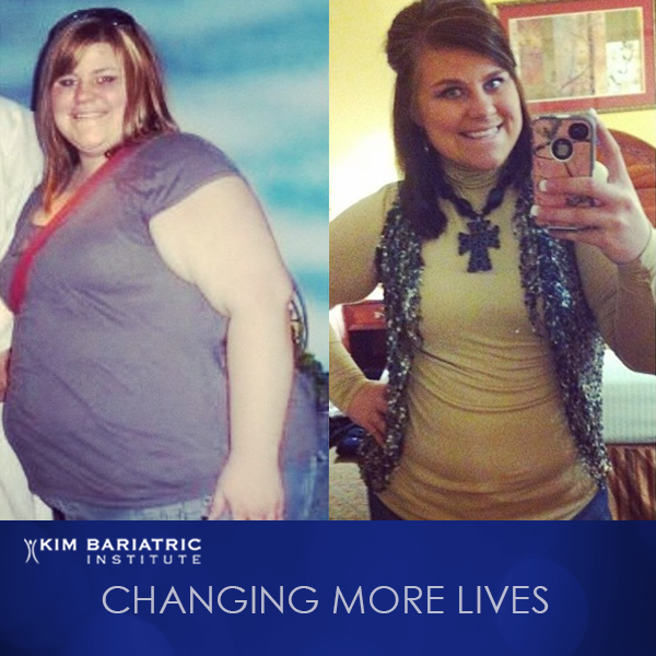 KimBariatric_Weightloss_Transformation_Amber_Featured_Patient_FB_IG