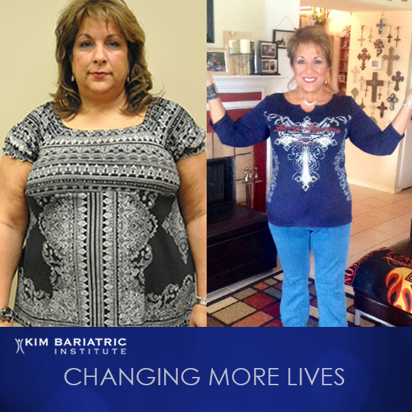 KimBariatric_Weightloss_Transformation_Donna_Featured_Patient_IG