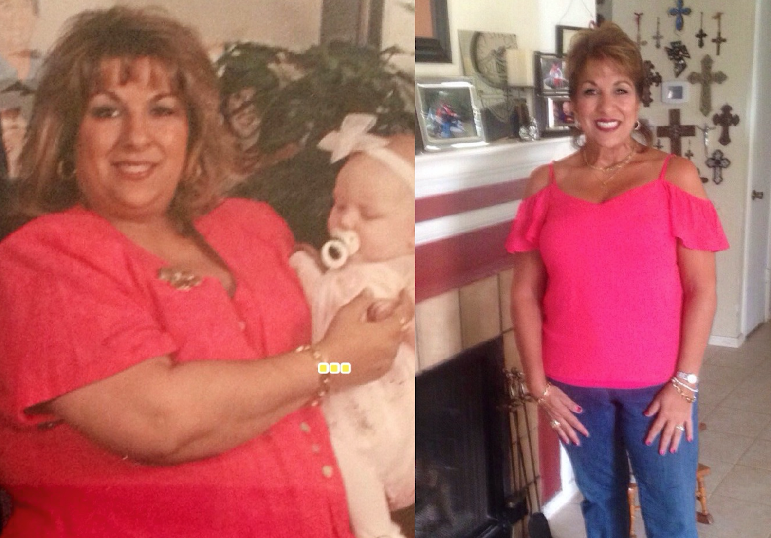 Changingmorelives Donna G Gastric Bypass Story