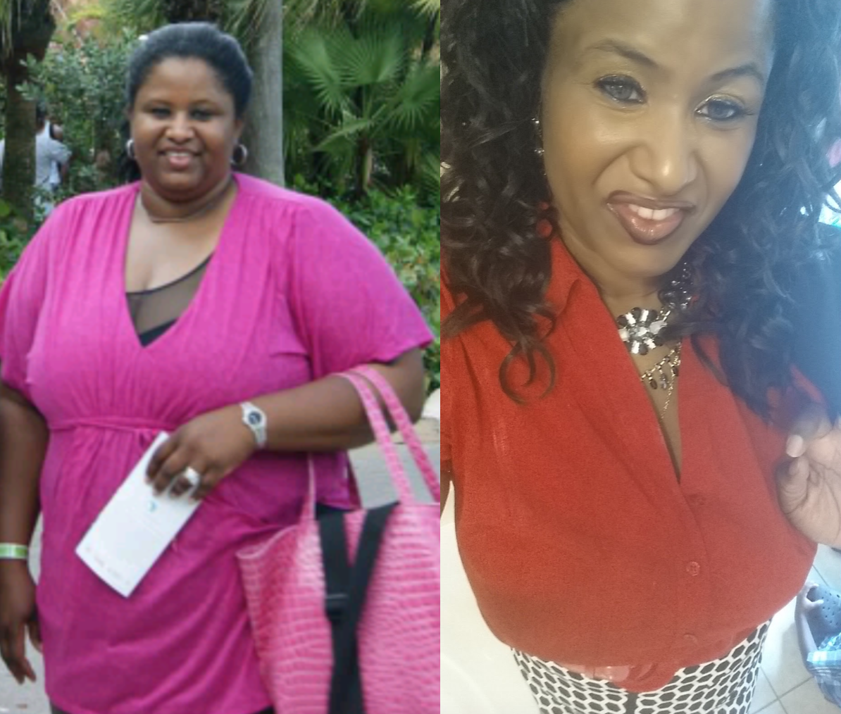 Changingmorelives Monique Butler Bariatric Surgery Story