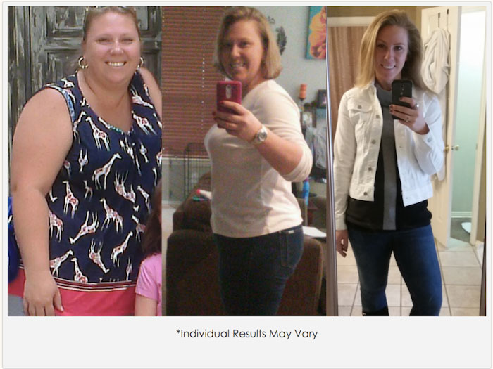 Bariatric Surgery Weight Loss In Dfw Dallas Fort Worth