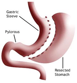 Laparoscopic Gastric Sleeve Resection
